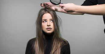 Here Is All You Need to Know About Why You Have Dandruff